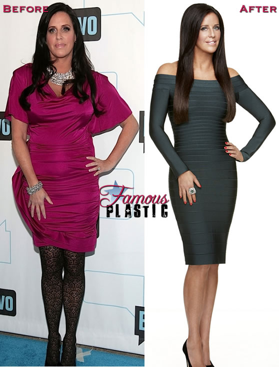 pattistanger-weightloss